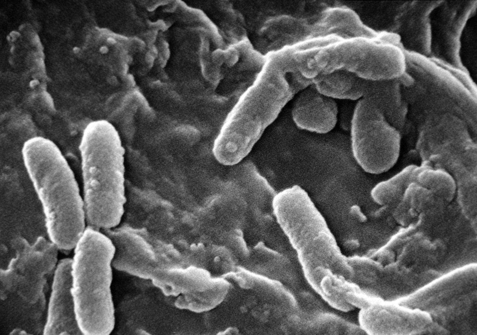 Cette bactérie peut devenir pathogène dans certaines circonstances